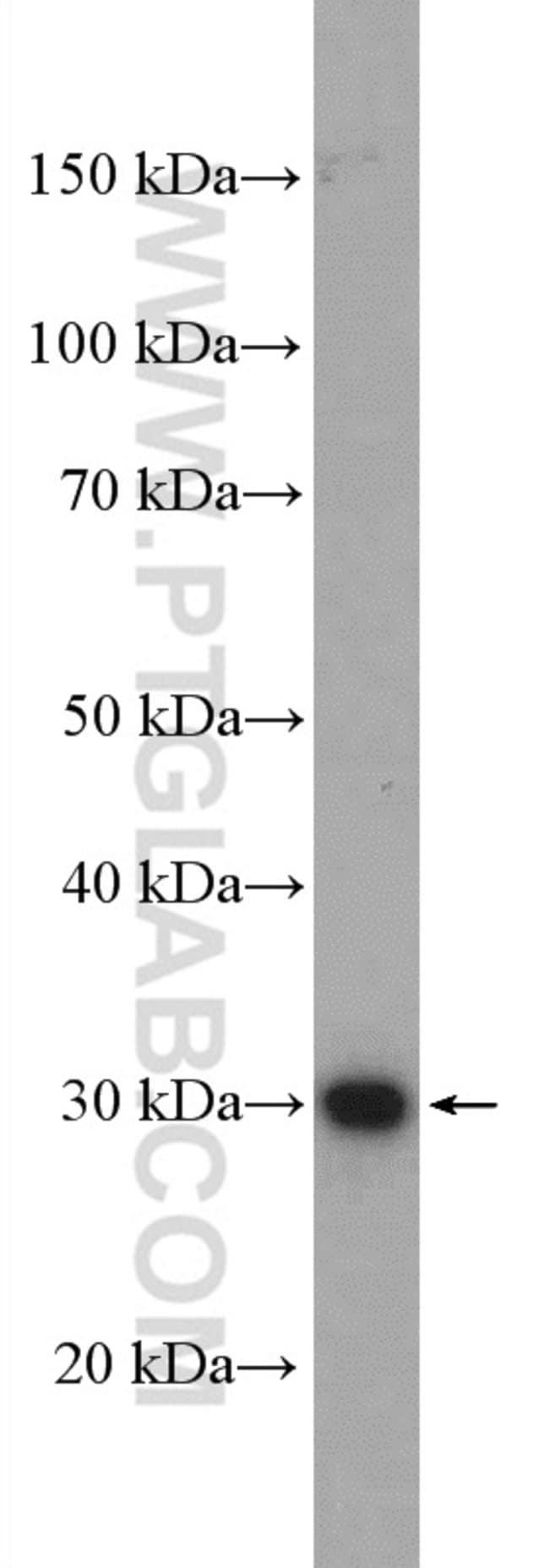 ZCRB1 Rabbit anti-Human, Mouse, Polyclonal, Proteintech 20 μL; Unconjugated voir les résultats