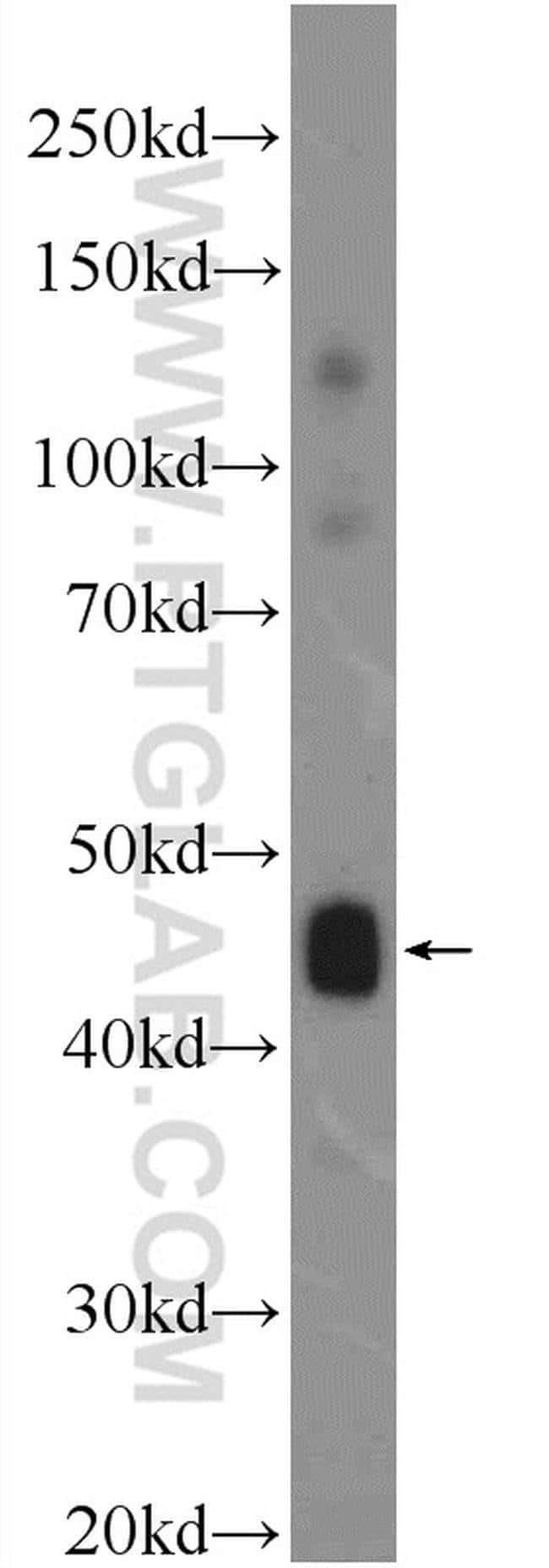 C9orf61 Rabbit anti-Human, Mouse, Polyclonal, Proteintech 150 μL; Unconjugated Ver productos