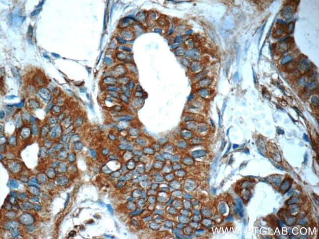 Mammaglobin A Rabbit anti-Human, Polyclonal, Proteintech 20 μL; Unconjugated voir les résultats