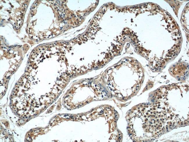 TACC3 Rabbit anti-Human, Polyclonal, Proteintech 150 μL; Unconjugated Ver productos