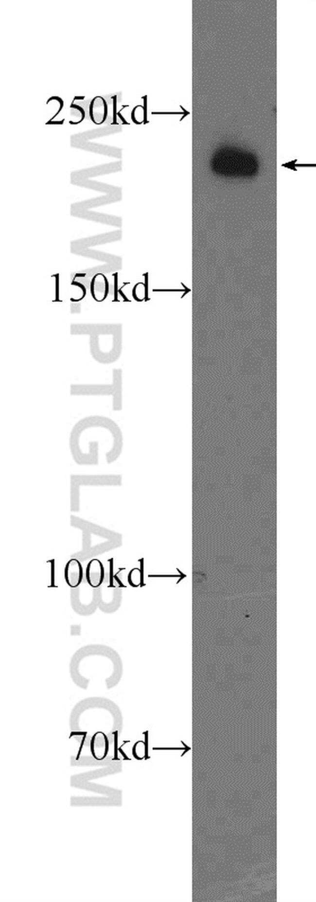 KIAA1429 Rabbit anti-Human, Polyclonal, Proteintech 150 μL; Unconjugated Ver productos