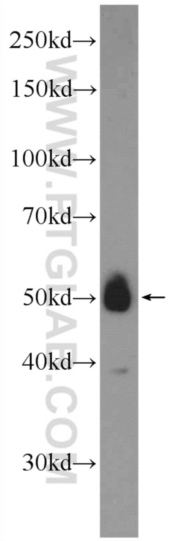 ZNF394 Rabbit anti-Human, Mouse, Polyclonal, Proteintech 20 μL; Unconjugated Produkte