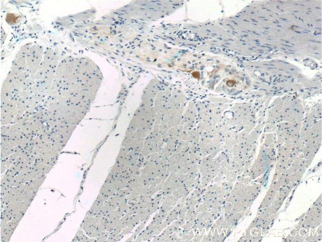 NF-M Rabbit anti-Human, Mouse, Rat, Polyclonal, Proteintech 20 μL; Unconjugated voir les résultats