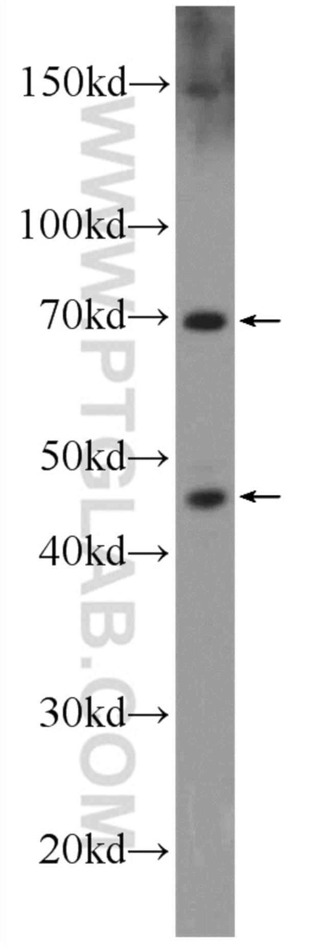 SETMAR Rabbit anti-Human, Polyclonal, Proteintech 20 μL; Unconjugated Produkte