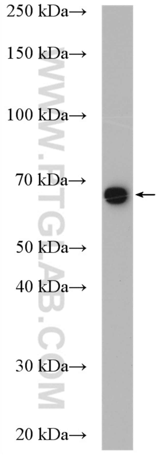 RNPC3 Rabbit anti-Human, Mouse, Polyclonal, Proteintech 20 μL; Unconjugated voir les résultats