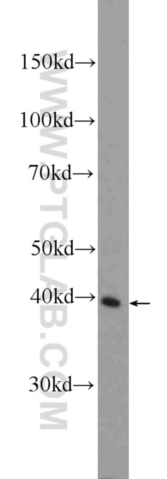 IDH3G Rabbit anti-Human, Mouse, Polyclonal, Proteintech 20 μL; Unconjugated Produkte