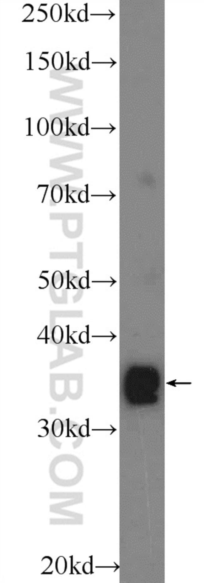TEX264 Rabbit anti-Human, Mouse, Polyclonal, Proteintech 20 μL; Unconjugated Produkte