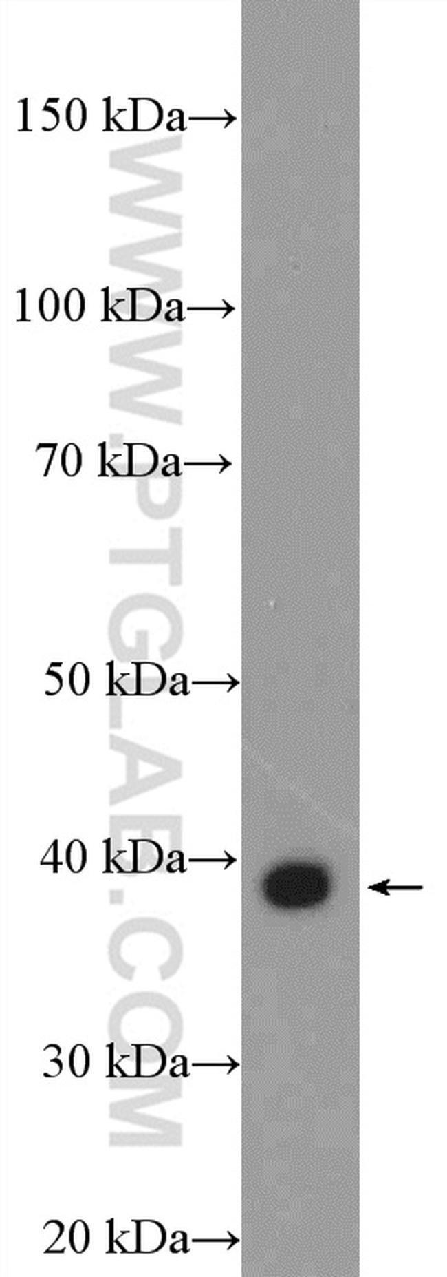 EDA Rabbit anti-Human, Mouse, Polyclonal, Proteintech 20 μL; Unconjugated Produkte