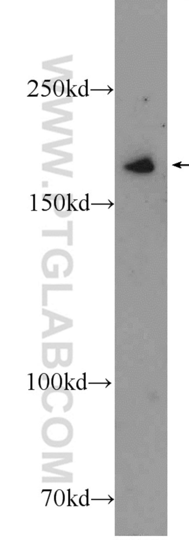 IQGAP3 Rabbit anti-Human, Polyclonal, Proteintech 20 μL; Unconjugated voir les résultats