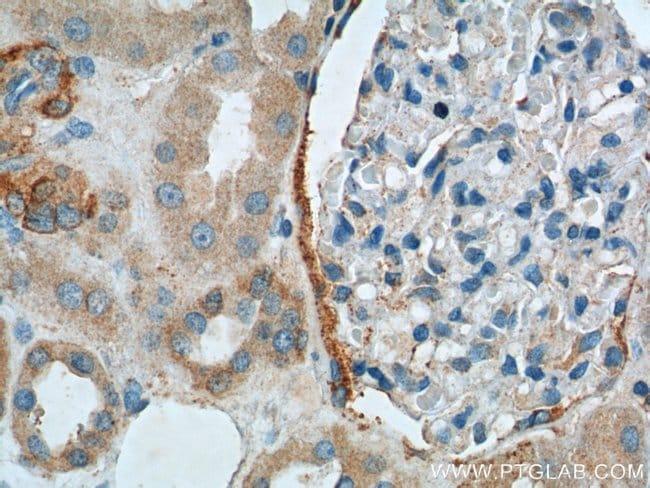 C20orf3 Rabbit anti-Human, Polyclonal, Proteintech 20 μL; Unconjugated Produkte
