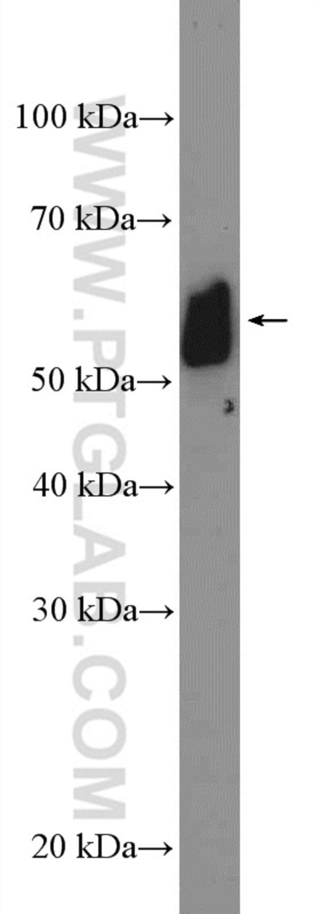 GALNT9 Rabbit anti-Human, Mouse, Rat, Polyclonal, Proteintech 20 μL; Unconjugated Produkte