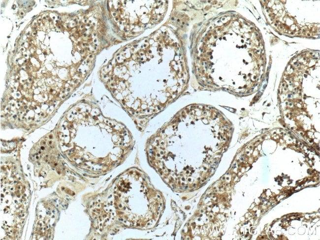 CCDC62 Rabbit anti-Human, Mouse, Polyclonal, Proteintech 20 μL; Unconjugated Produkte