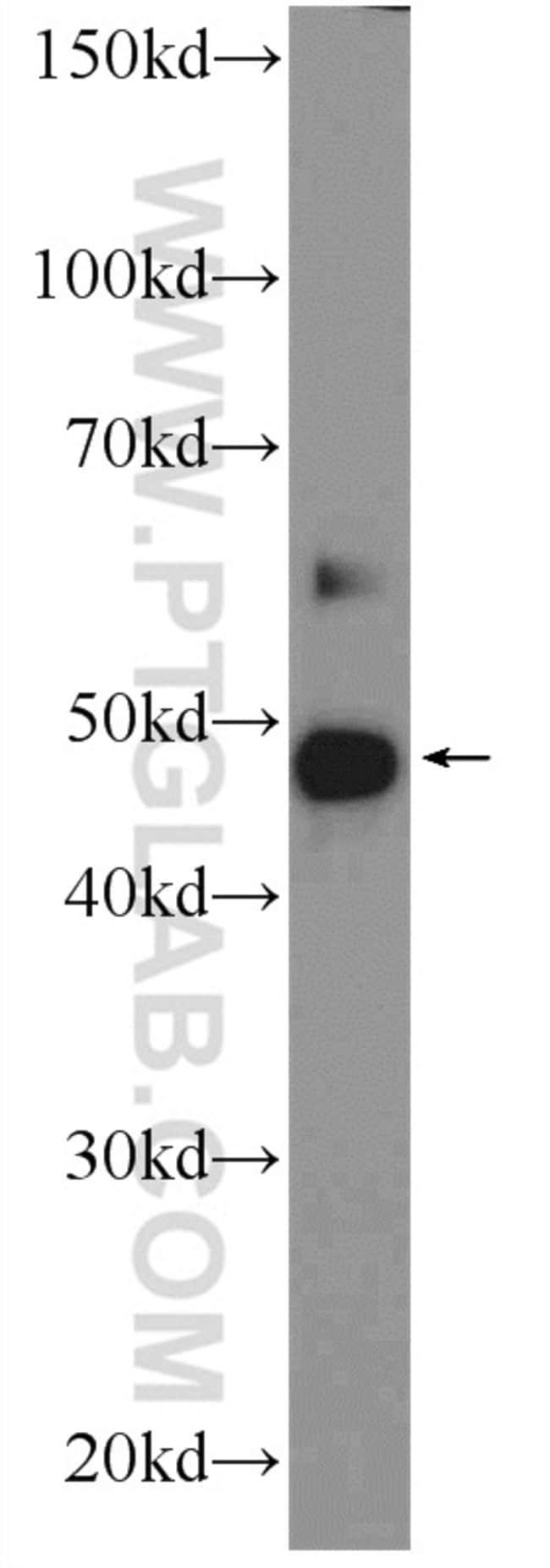ZDHHC7 Rabbit anti-Human, Polyclonal, Proteintech 150 μL; Unconjugated Ver productos