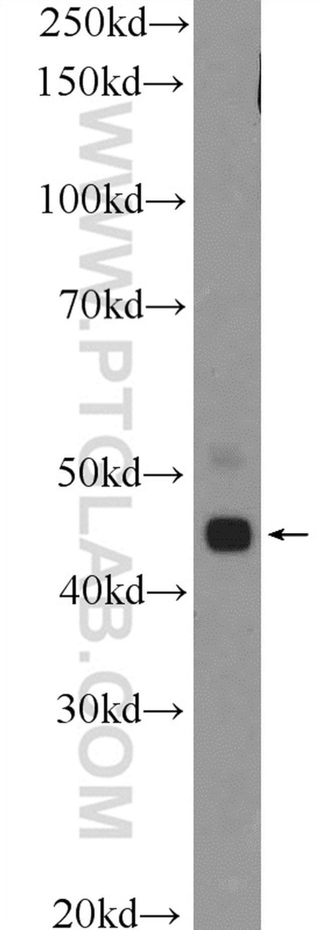 TTLL10 Rabbit anti-Human, Mouse, Rat, Polyclonal, Proteintech 150 μL; Unconjugated Ver productos