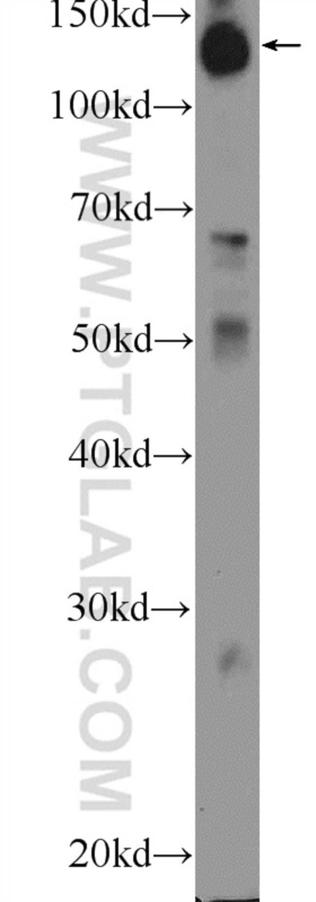 HISPPD1 Rabbit anti-Human, Polyclonal, Proteintech 20 μL; Unconjugated Produkte
