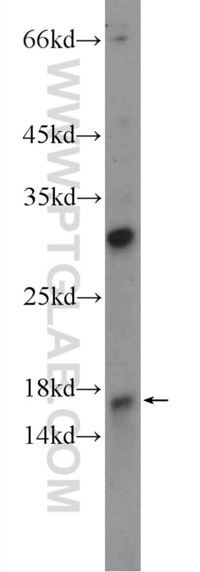 C9orf9 Rabbit anti-Human, Mouse, Rat, Polyclonal, Proteintech 150 μL; Unconjugated Ver productos