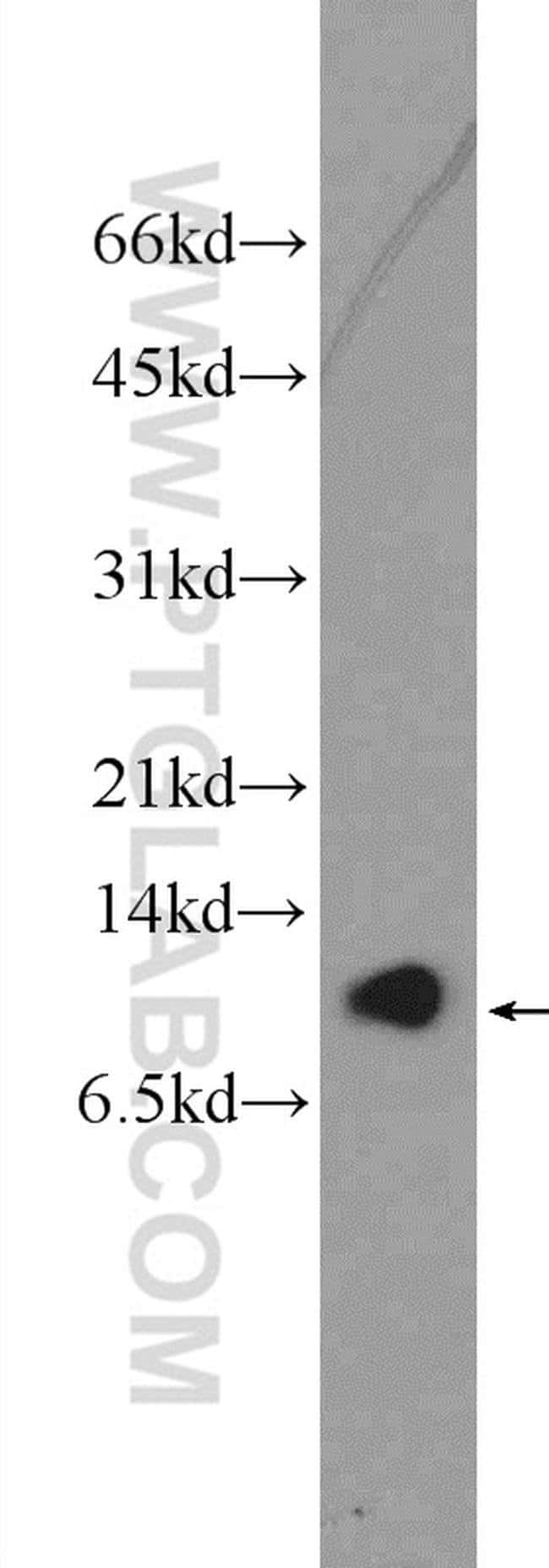 C16orf61 Rabbit anti-Human, Polyclonal, Proteintech 150 μL; Unconjugated Ver productos