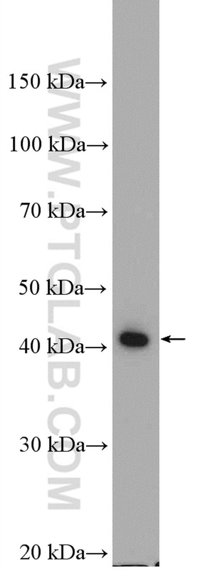 ABHD1 Rabbit anti-Human, Mouse, Polyclonal, Proteintech 20 μL; Unconjugated Produkte