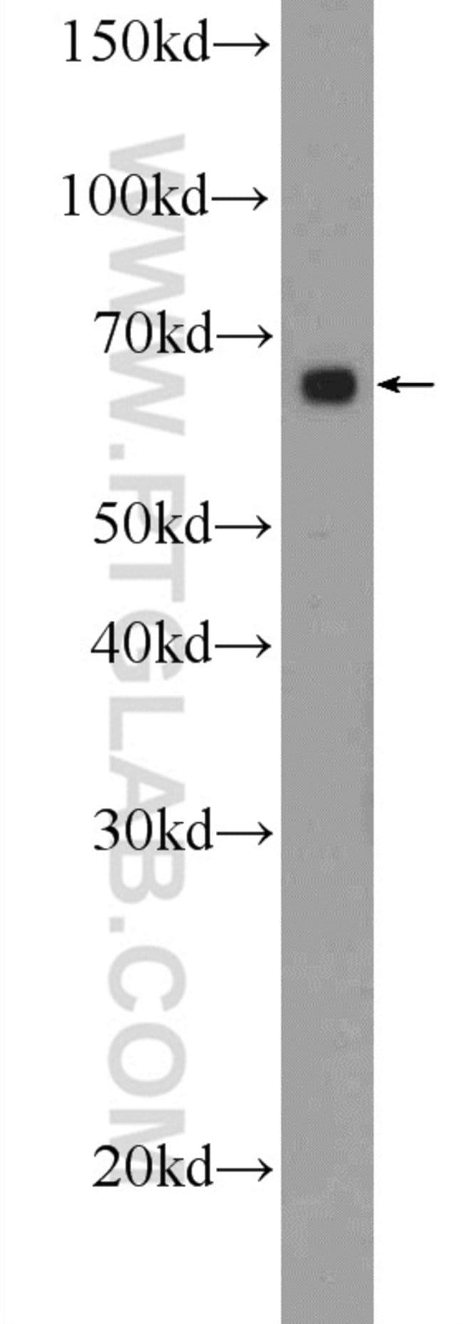 MBTD1 Rabbit anti-Human, Mouse, Polyclonal, Proteintech 150 μL; Unconjugated Ver productos