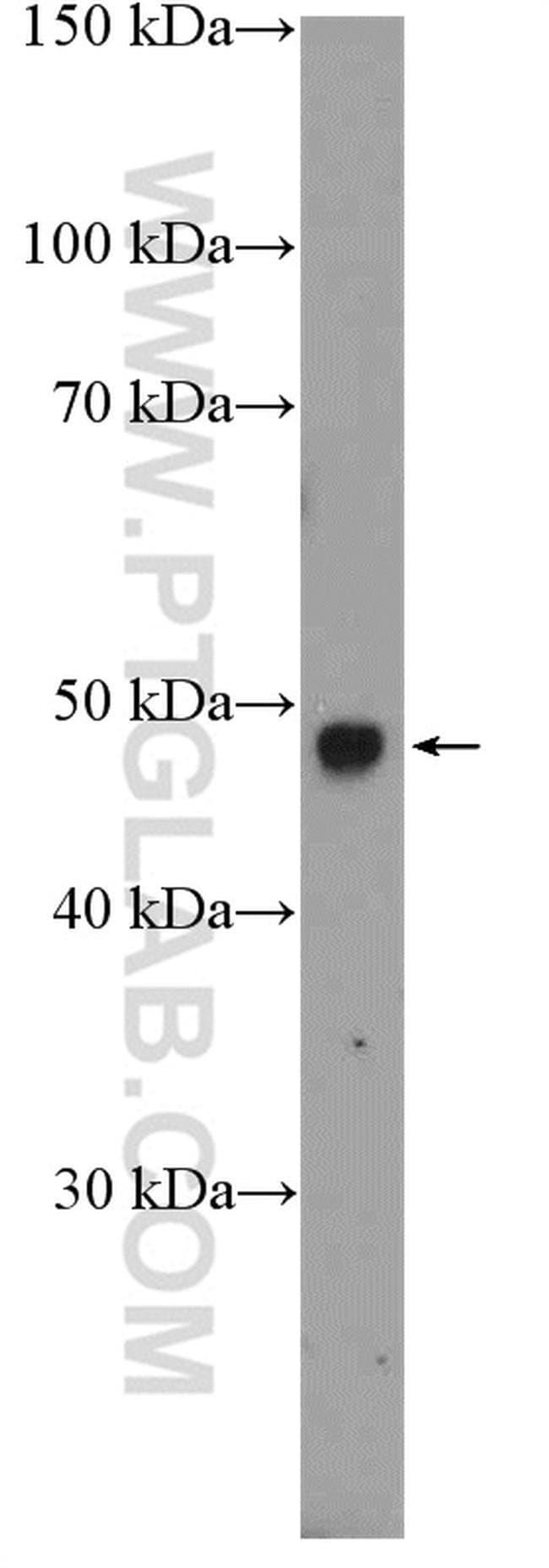 RIMKLB Rabbit anti-Human, Mouse, Polyclonal, Proteintech 20 μL; Unconjugated voir les résultats