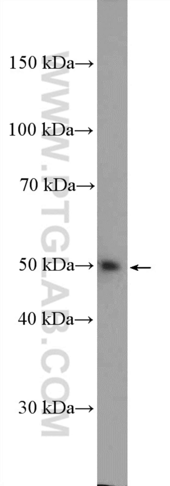 LSM11 Rabbit anti-Human, Polyclonal, Proteintech 150 μL; Unconjugated Ver productos