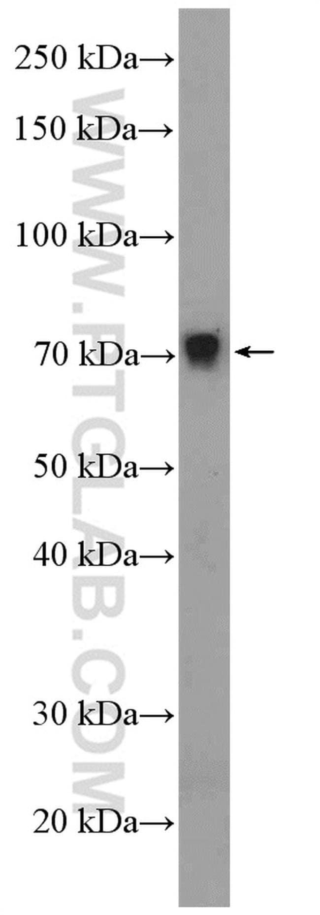 ZNF606 Rabbit anti-Human, Mouse, Polyclonal, Proteintech 20 μL; Unconjugated Produkte