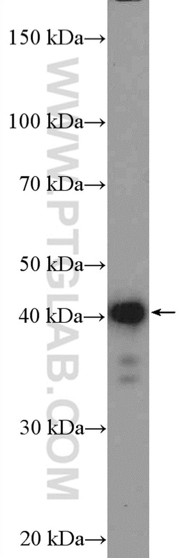 C14orf28 Rabbit anti-Human, Polyclonal, Proteintech 20 μL; Unconjugated voir les résultats