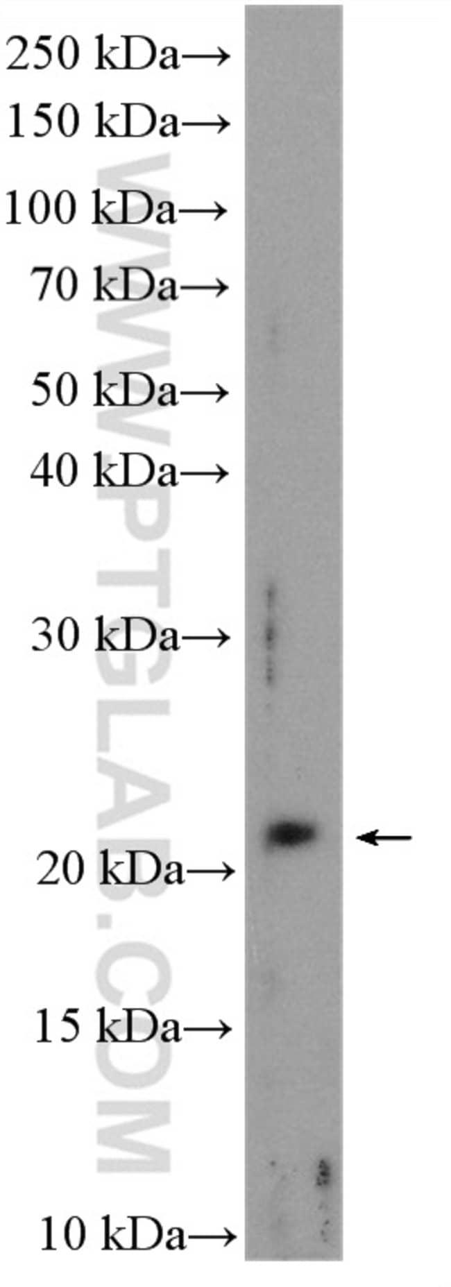 C1orf86 Rabbit anti-Human, Polyclonal, Proteintech 20 μL; Unconjugated Produkte