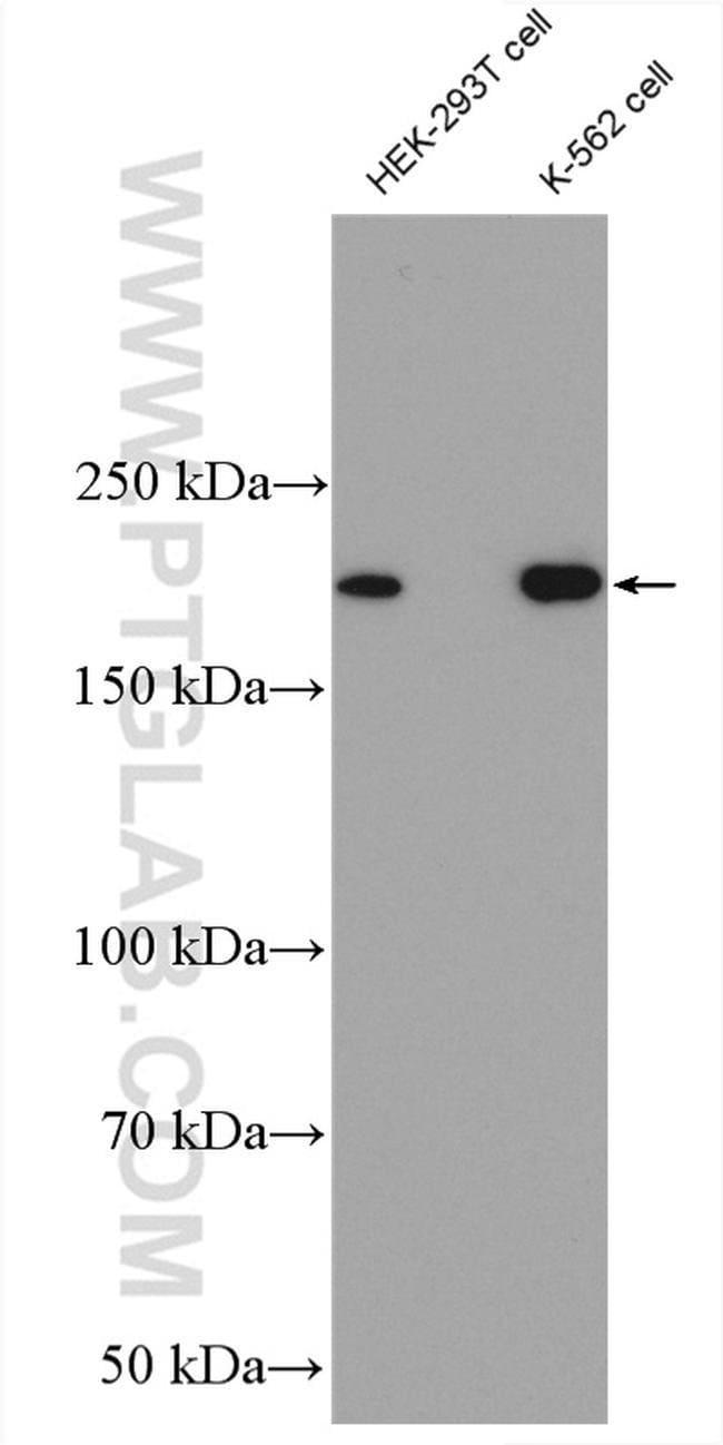 ASPM Rabbit anti-Human, Polyclonal, Proteintech 20 μL; Unconjugated Produkte