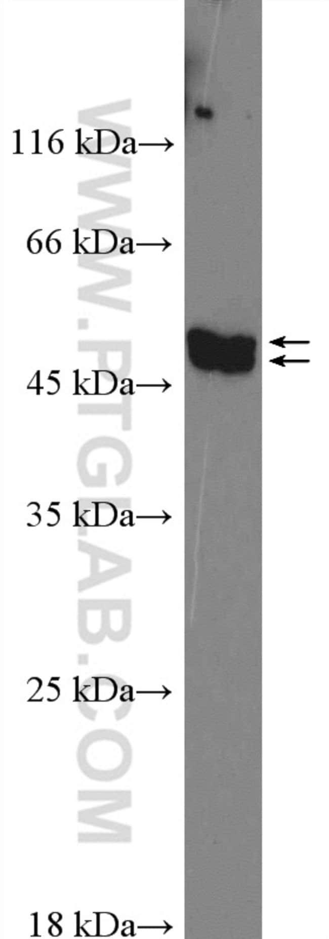 FAM126A Rabbit anti-Human, Polyclonal, Proteintech 20 μL; Unconjugated voir les résultats