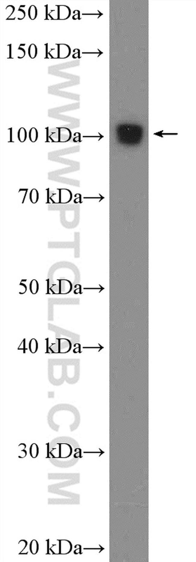 CLEC16A Rabbit anti-Human, Mouse, Polyclonal, Proteintech 150 μL; Unconjugated Ver productos