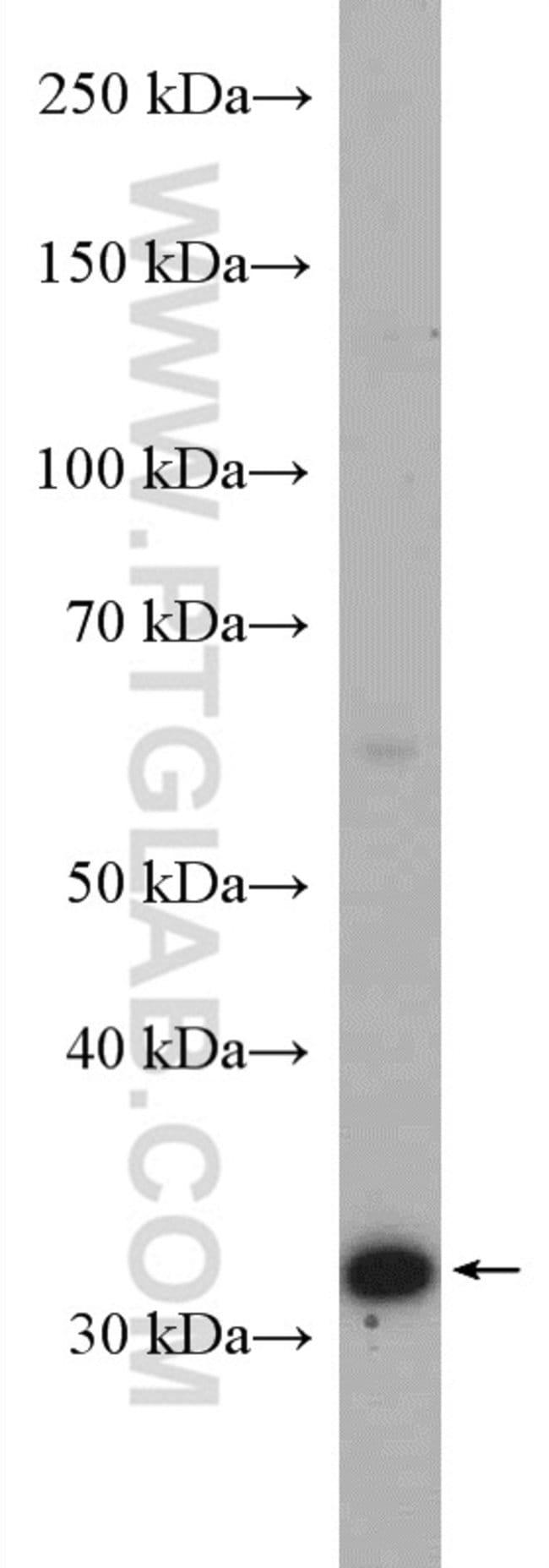MCU/CCDC109A Rabbit anti-Human, Polyclonal, Proteintech 20 μL; Unconjugated voir les résultats
