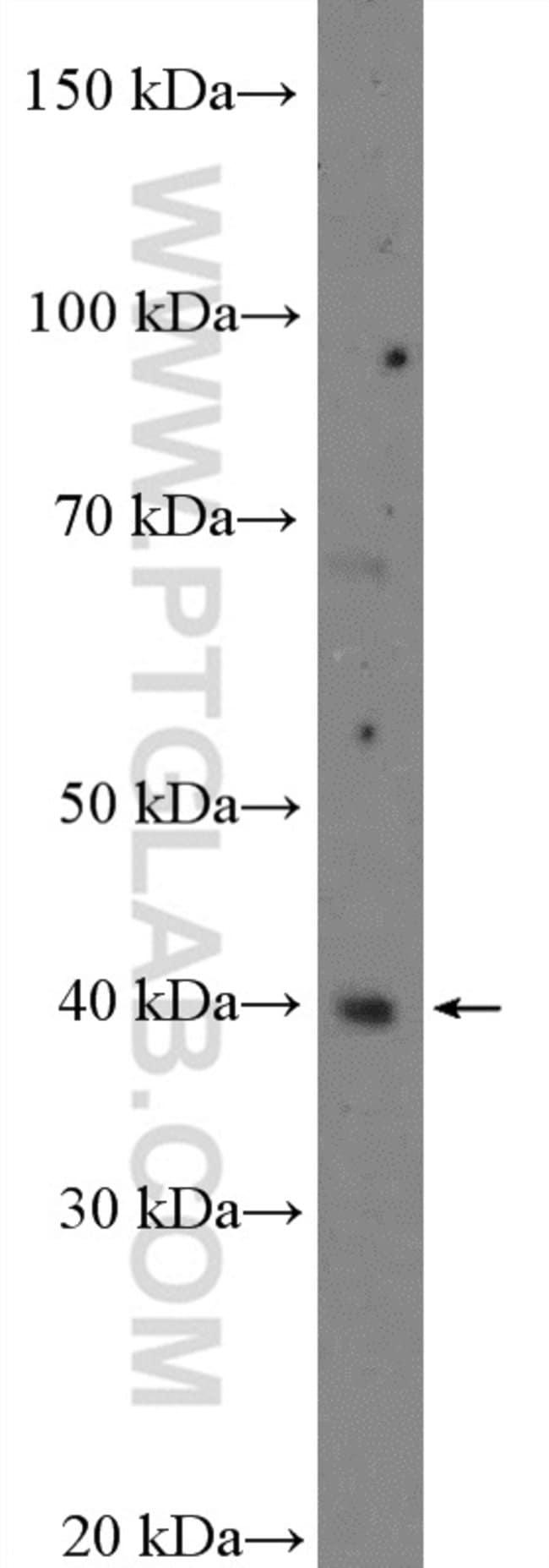 C10orf46 Rabbit anti-Human, Mouse, Polyclonal, Proteintech 20 μL; Unconjugated Produkte