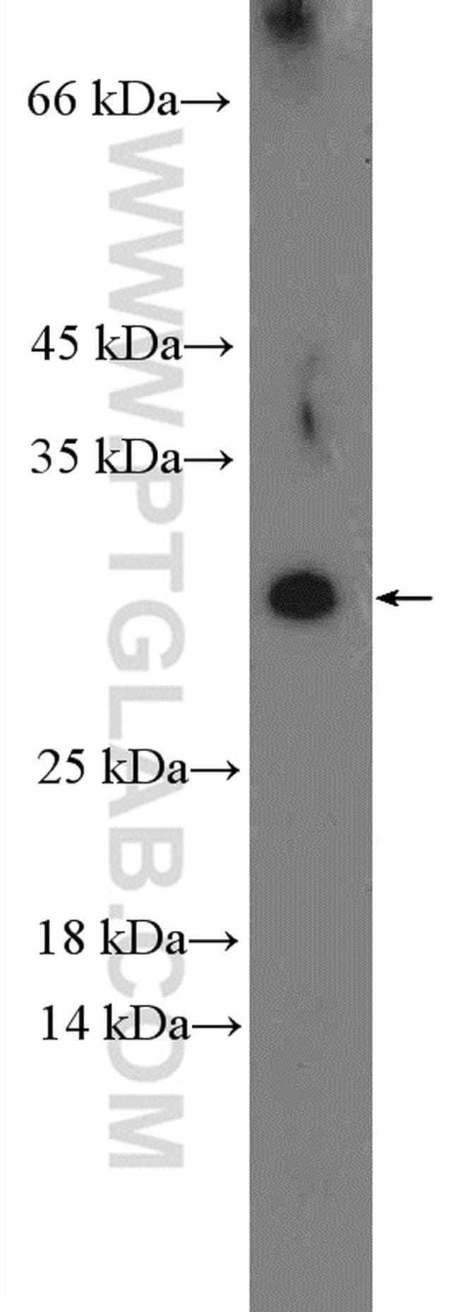 DYDC1 Rabbit anti-Human, Mouse, Polyclonal, Proteintech 150 μL; Unconjugated Ver productos