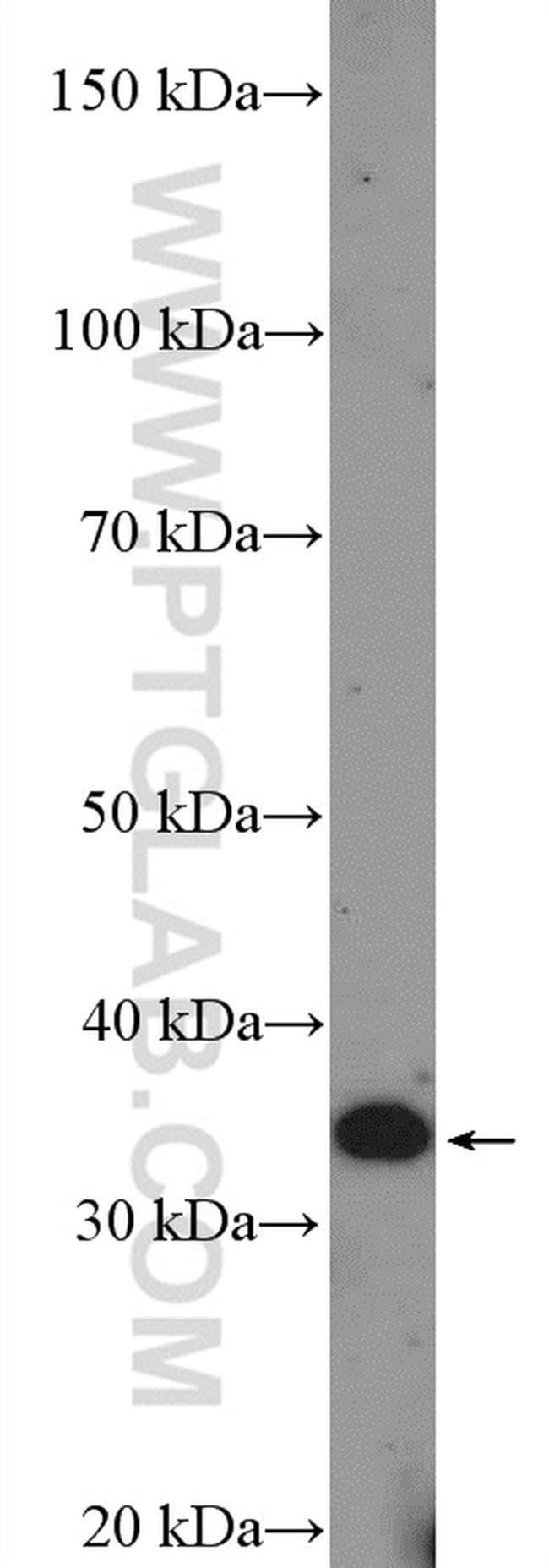 DCUN1D3 Rabbit anti-Human, Polyclonal, Proteintech 20 μL; Unconjugated voir les résultats