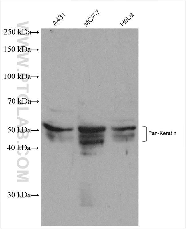 pan-keratin Rabbit anti-Human, Polyclonal, Proteintech 150 μL; Unconjugated Ver productos