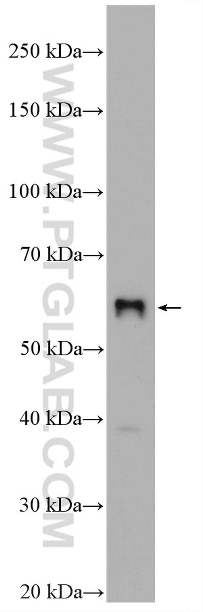 SLC2A9 Rabbit anti-Human, Mouse, Polyclonal, Proteintech 20 μL; Unconjugated Produkte