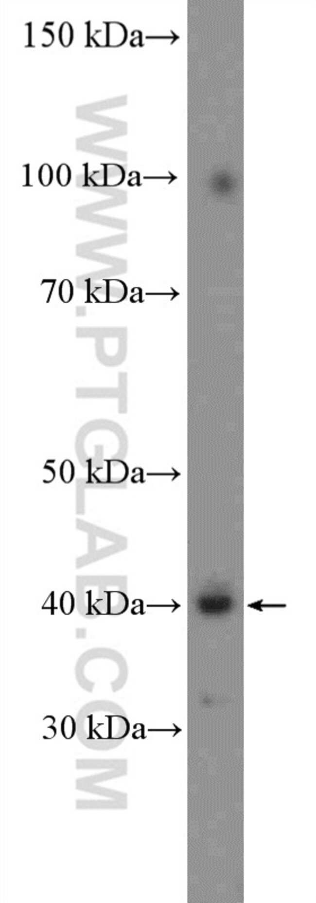FAM131B Rabbit anti-Human, Polyclonal, Proteintech 150 μL; Unconjugated Ver productos