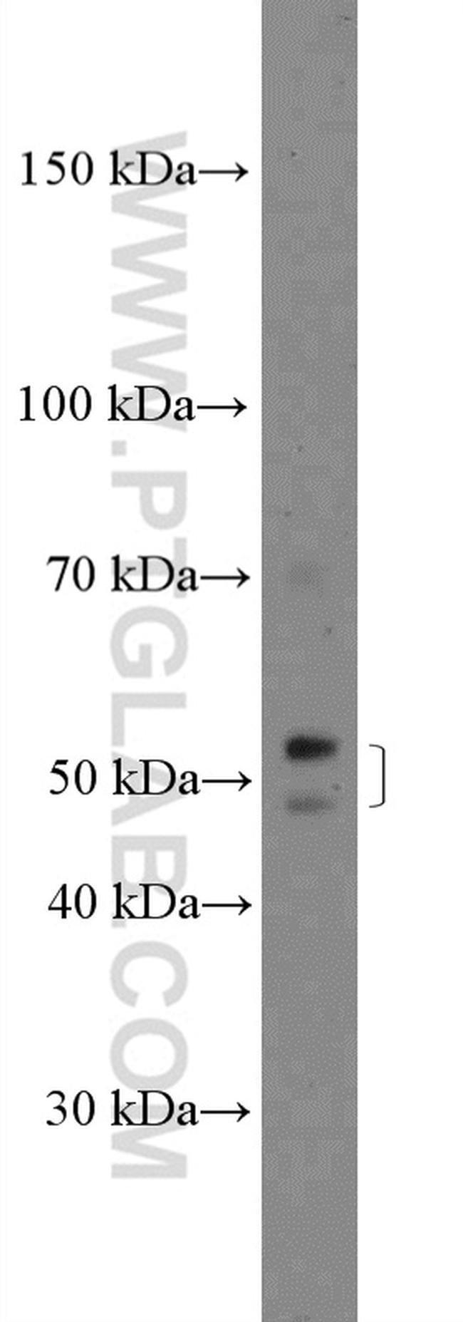 ZDHHC1 Rabbit anti-Human, Polyclonal, Proteintech 20 μL; Unconjugated voir les résultats