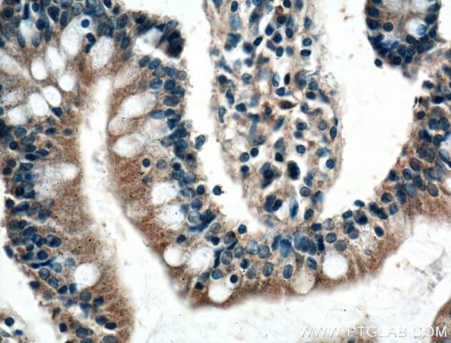 SCF Rabbit anti-Human, Mouse, Polyclonal, Proteintech 20 μL; Unconjugated voir les résultats