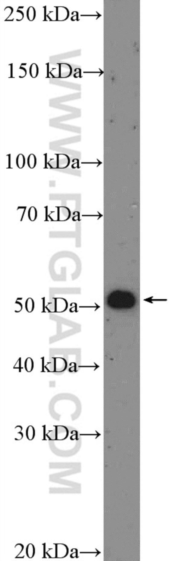 p70(S6K) Rabbit anti-Human, Polyclonal, Proteintech 20 μL; Unconjugated Produkte