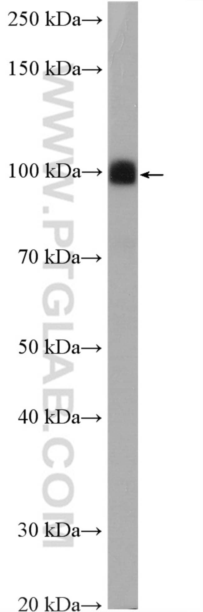 DRP2 Rabbit anti-Human, Mouse, Rat, Polyclonal, Proteintech 20 μL; Unconjugated Produkte