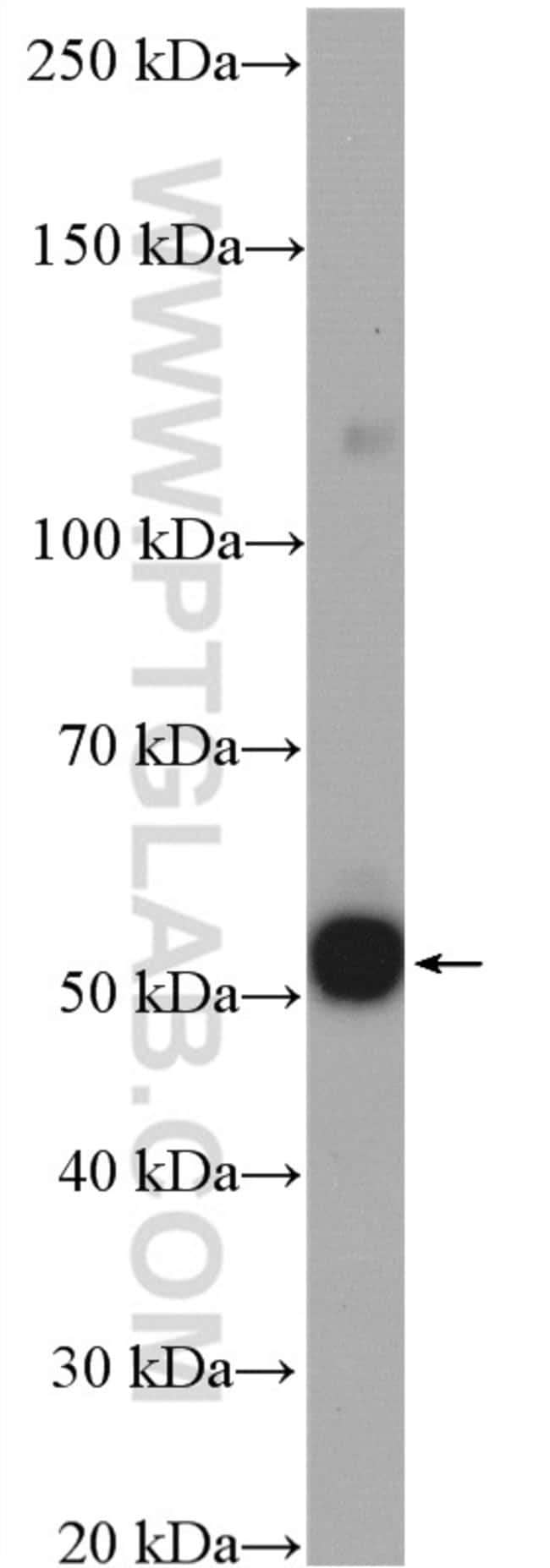 CFDP1 Rabbit anti-Human, Polyclonal, Proteintech 20 μL; Unconjugated Produkte