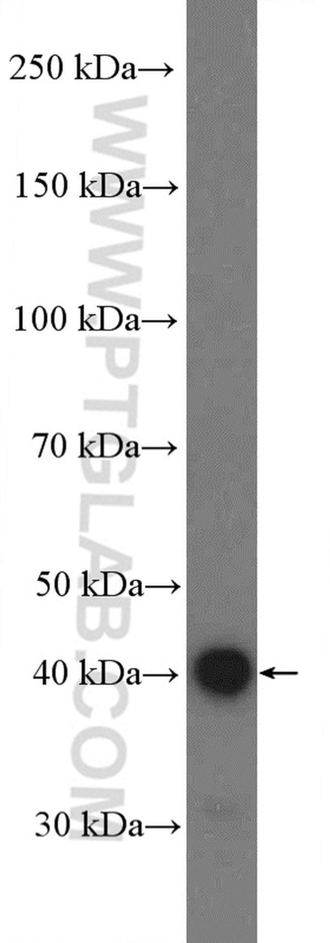 BDKRB1 Rabbit anti-Human, Polyclonal, Proteintech 20 μL; Unconjugated voir les résultats
