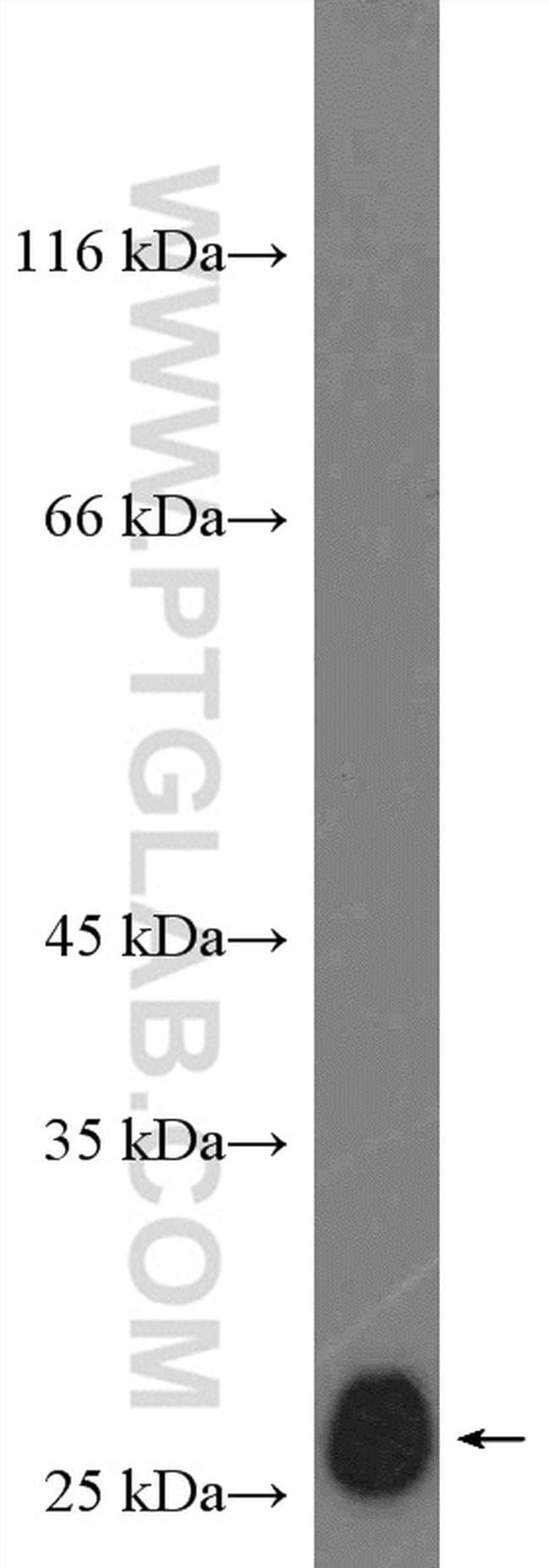 P27/KIP1 Rabbit anti-Human, Mouse, Polyclonal, Proteintech 20 μL; Unconjugated voir les résultats