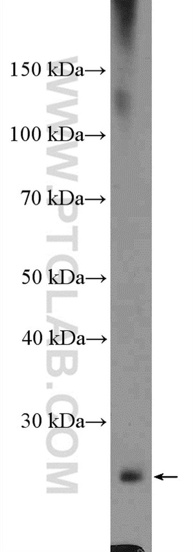 CYBRD1 Rabbit anti-Human, Polyclonal, Proteintech 150 μL; Unconjugated Ver productos