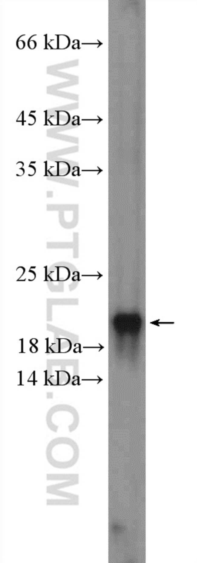 CENPA Rabbit anti-Human, Polyclonal, Proteintech 20 μL; Unconjugated voir les résultats
