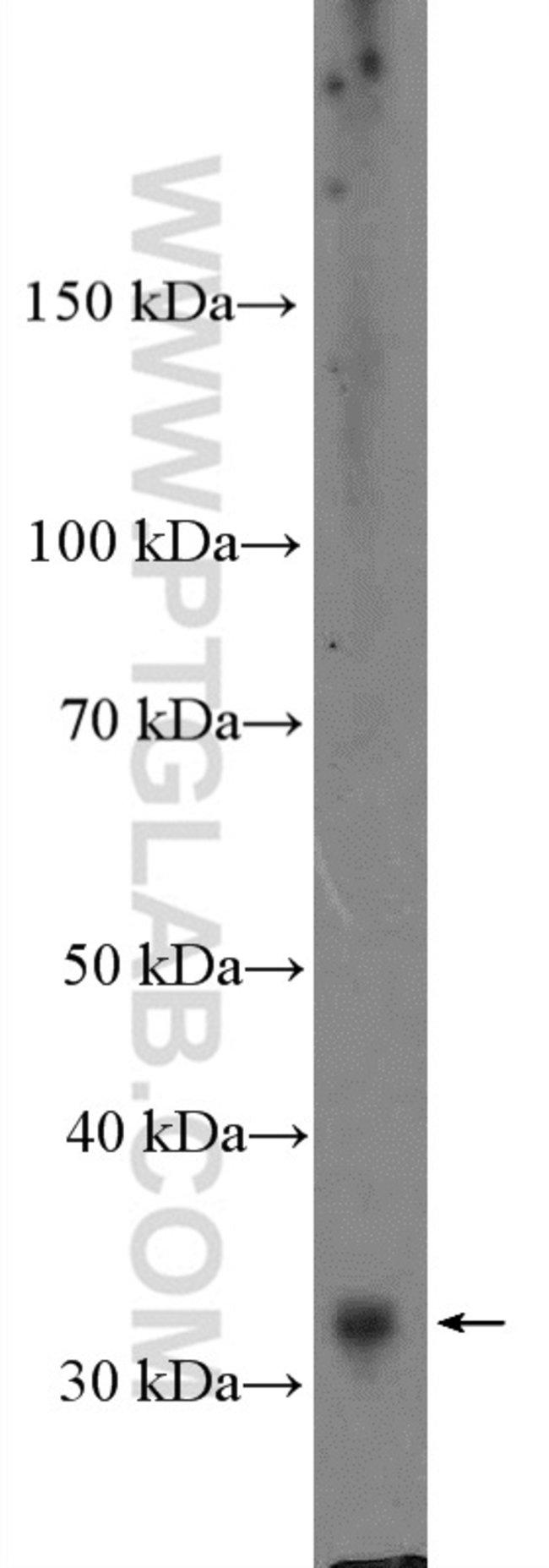 Cyclin D3 Rabbit anti-Human, Rat, Polyclonal, Proteintech 150 μL; Unconjugated Ver productos