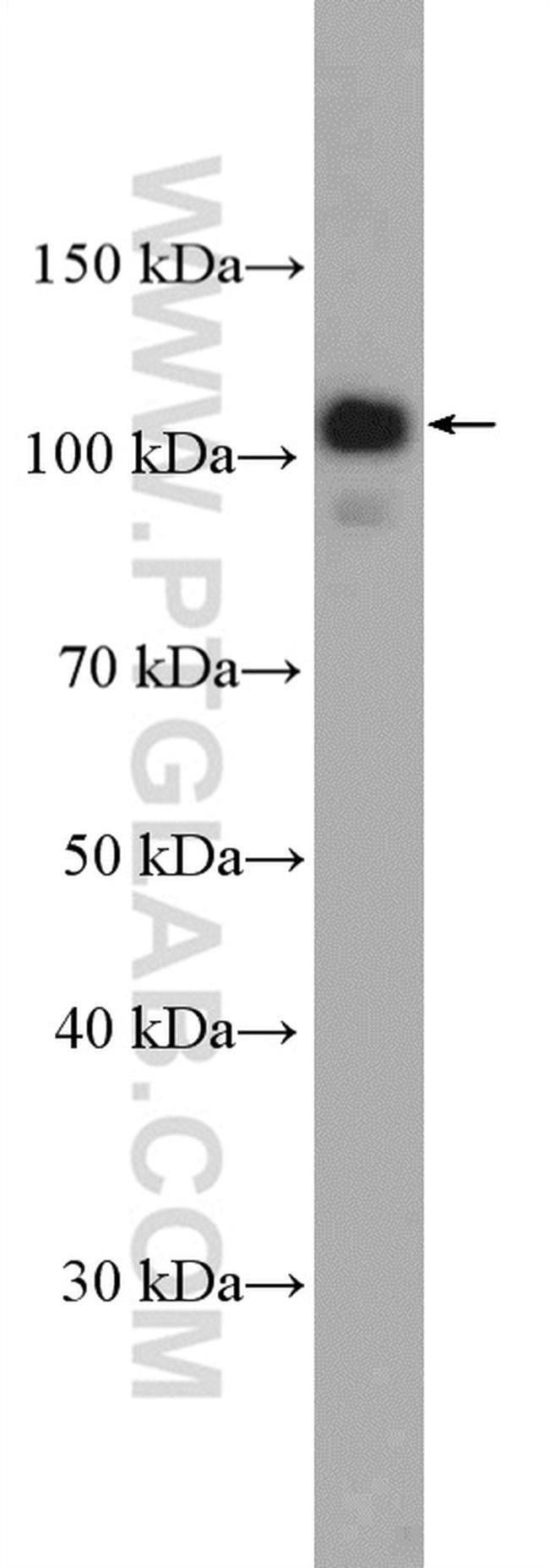 FCHO1 Rabbit anti-Human, Polyclonal, Proteintech 150 μL; Unconjugated Ver productos