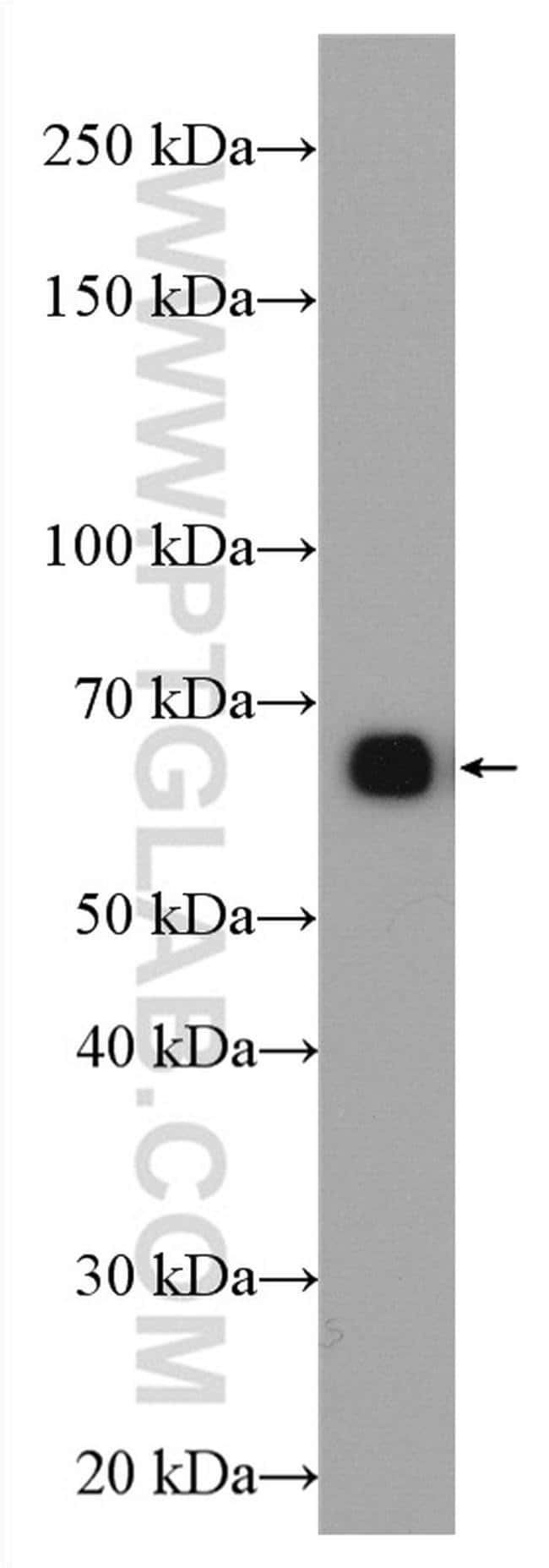 GCGR Rabbit anti-Human, Mouse, Polyclonal, Proteintech 20 μL; Unconjugated Produkte